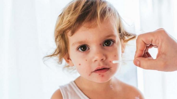 Çocuk Sağlığı İle İlgili Sorular ve Cevaplar