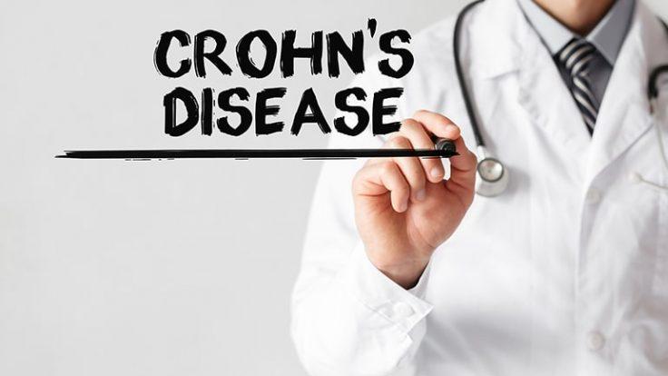 Ani Kilo Kayıplarının Sebebi Crohn Hastalığı Olabilir…