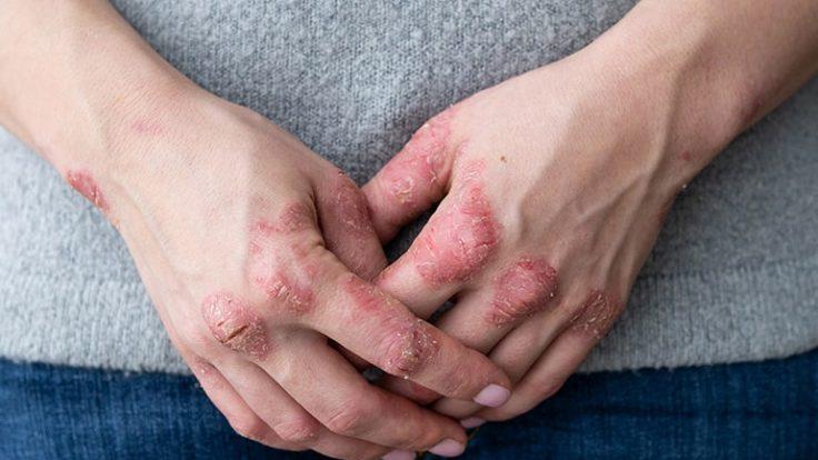 Sedef Hastalığı Kronik Olduğundan Tedavi Süreklidir…